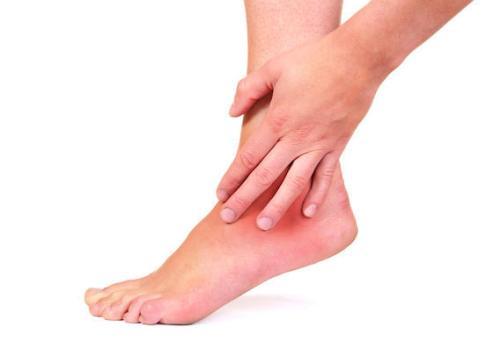 Симптомы и лечение артрита голеностопного сустава фото