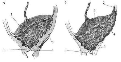 Варианты приращения плаценты.А - increta; Б - percreta