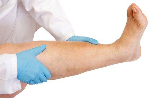 Отек ног в области стопы, причины и лечение фото