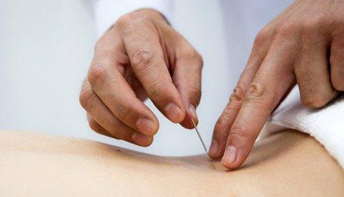 Иглоукалывание при грыже поясничного отдела позвоночника: отзывы пациентов и специалистов фото