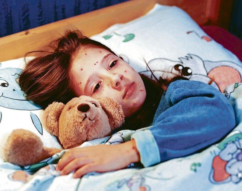 Больному нужно обеспечить постельный режим и немного снизить температуру в помещении