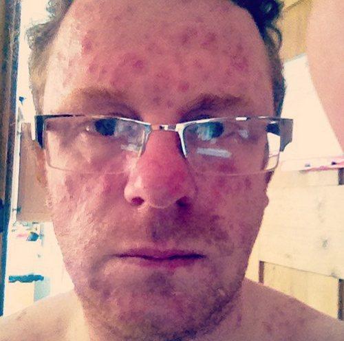 Симптомы болезни и последствия после ветрянки у взрослых мужчин фото