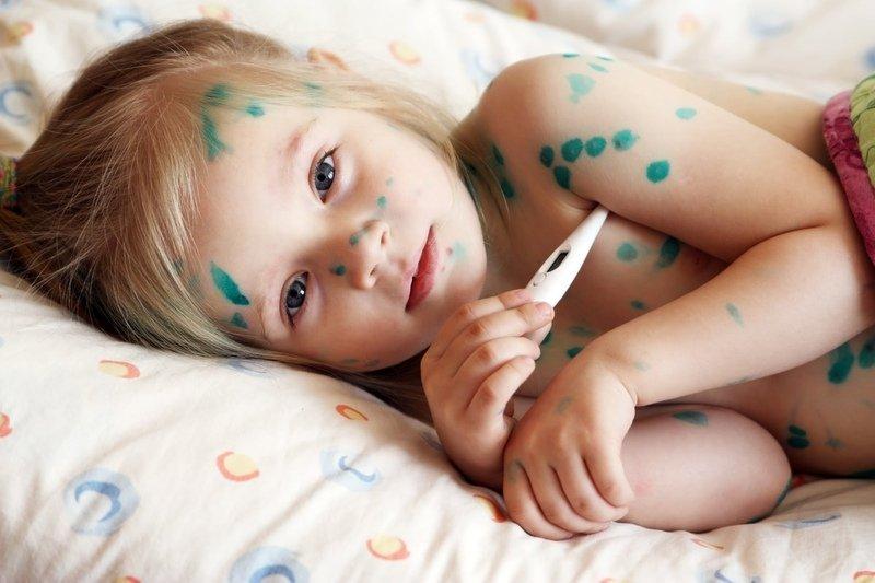 Отзывы при использовании Ацикловир мази при ветрянке у детей, как правило, положительные