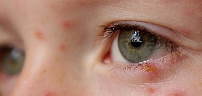 Большую опасность несет сыпь на глазах, которая может привести к проблемам со зрением в дальнейшем