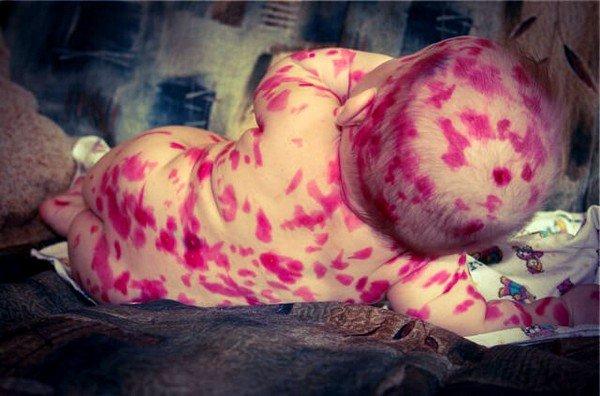 Раствор в 97% случаев абсолютно безопасен для ребенка, так как составляющие компоненты добавлены в малых дозах, и они не способны нанести вред молодому организму