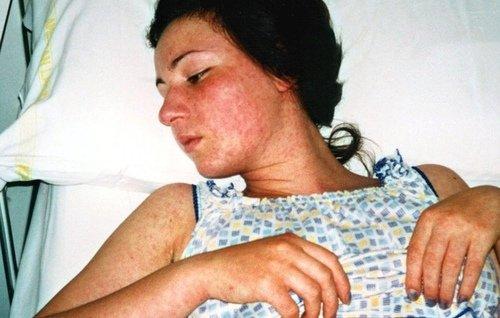 Как начинается ветрянка у взрослых: симптомы и фото болезни фото