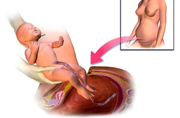 Показаниями для кесарева сечения может быть неправильное положение малыша в утробе, полное предлежание детского места, очень крупные размеры ребенка и многоплодная беременность