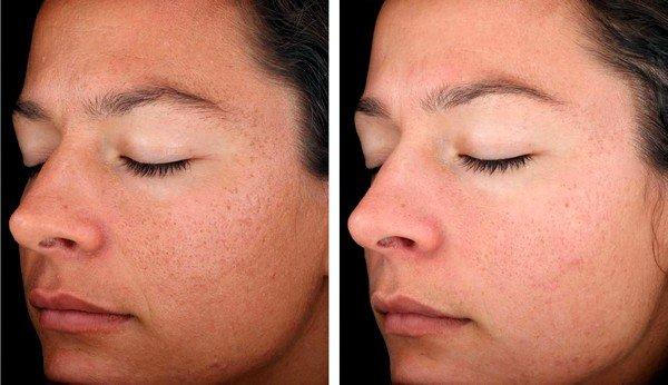 Хорошо зарекомендовали себя пилинги, лазерная шлифовка кожи, микродермабразия и коллагеновые процедуры