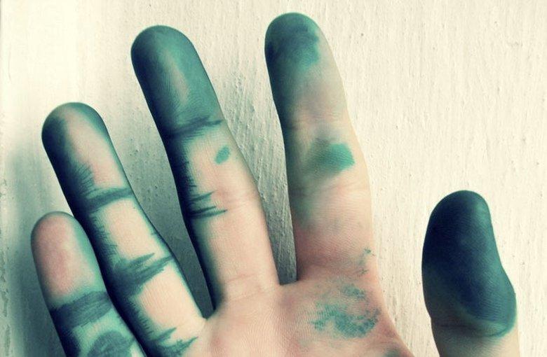 Как быстро отмыть зеленку с кожи у ребенка после ветрянки фото