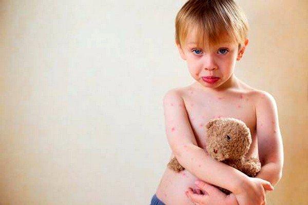 Вирус герпеса шестого типа чаще всего развивается у детей раннего возраста и сопровождается высокой температурой, интенсивной сыпью