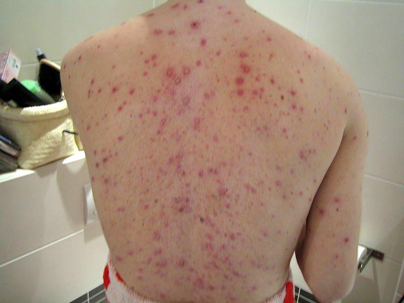 На коже появляется сыпь, позже она превращается в волдыри диаметром в 2-3 мм