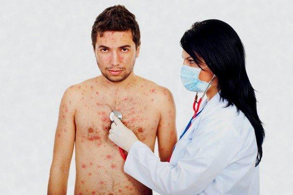 После того как пациент переболеет ветрянкой, у него появится стойкий иммунитет к данному заболеванию