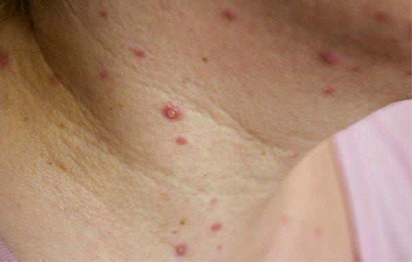 Вирус не устойчив во внешней среде, поэтому маловероятно заражение через третьих лиц или через использование вещей больного