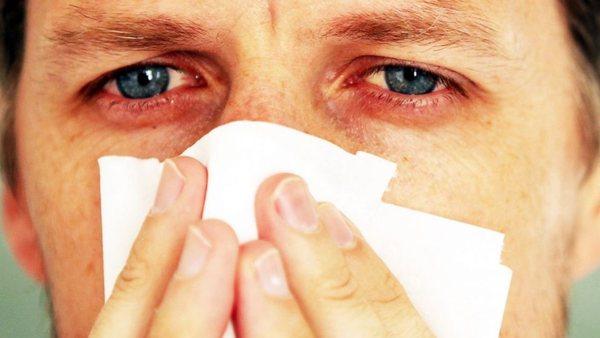 Конъюнктивит и насморк - это симптомы аллергической реакции