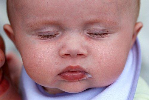 Как выглядит аллергия у грудничков при различном кормлении? фото