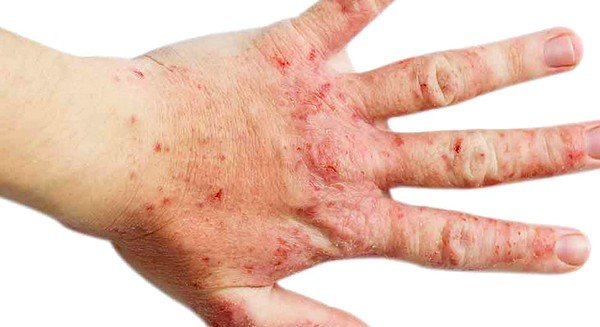 Дерматоз аллергенного типа