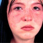 allergiya_na_lice1