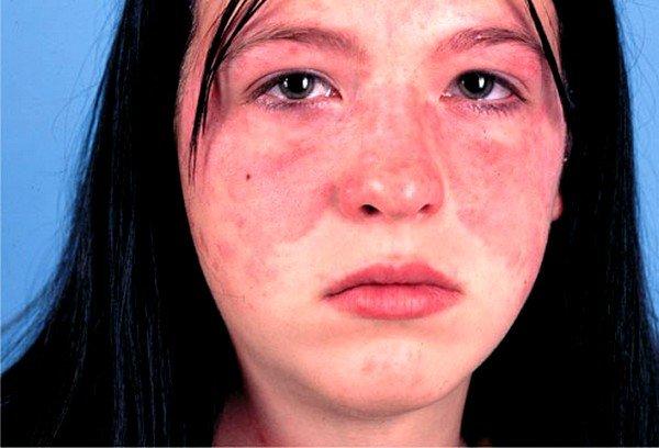 Наиболее распространенные виды лечения аллергии фото