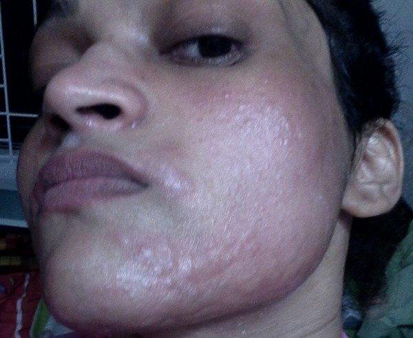 Аллергия на лице у взрослого лечение