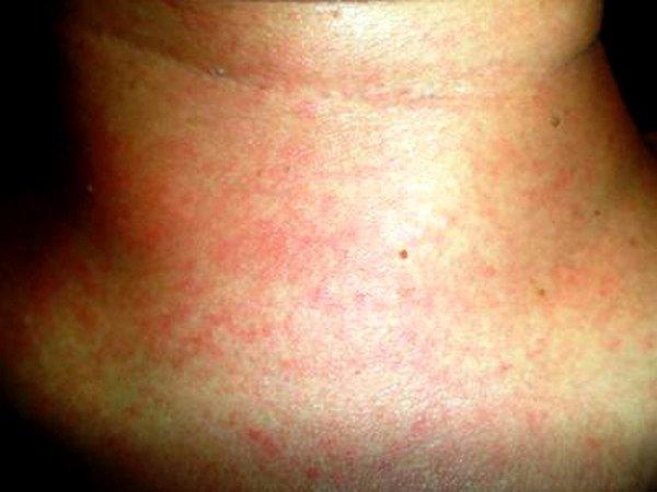 Использование некачественной косметики может стать причиной аллергии