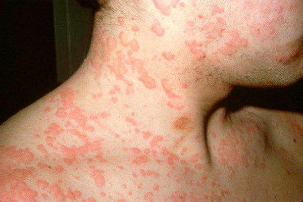 Причины возникновения аллергии на шее фото