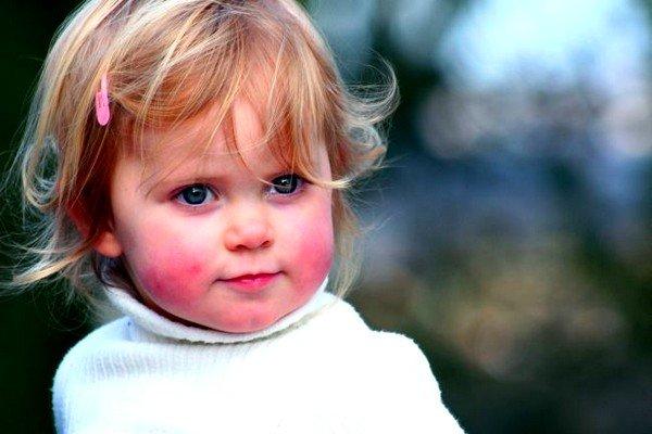 Особенности аллергических реакций у детей фото