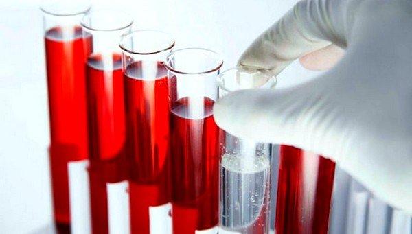 Для более точного выявления причин болезни используют забор крови при помощи шприца или царапины