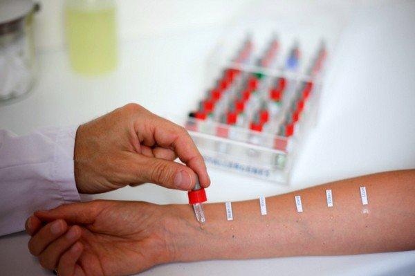 Наиболее широко распространенный тест – взятие проб с кожи и специальный анализ крови на наличие определенных иммуноглобулинов
