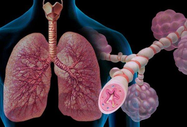 Бронхиальная астма имеет аллергическую природу