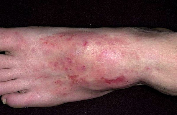 Дерматиты аллергического типа проявляются в виде отечных покраснений кожных покровов