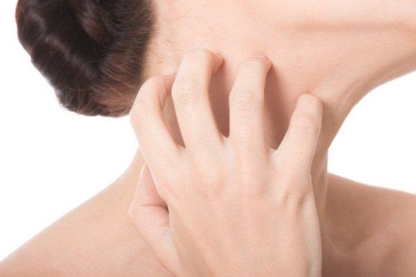 При аллергии может возникать кожный зуд