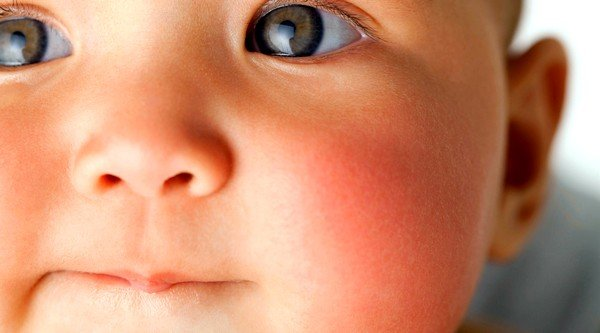 Аллергия на щеках у грудных детей может служить признаком того, что они имеют наследственную предрасположенность к ней