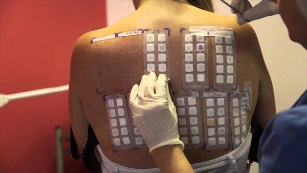 Накожные пробы - при таком исследовании больной носит пластинки на спине в течении 2-х дней
