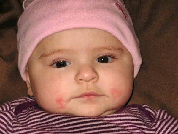 Аллергия на щеках в принципе достаточно легко излечивается, не оставляя при своевременном лечении следа в человеческом организме