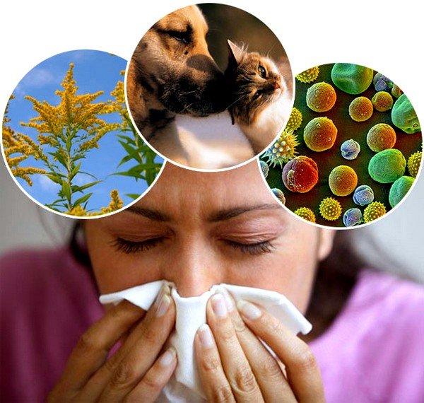 Насморк - один из симптомов аллергии