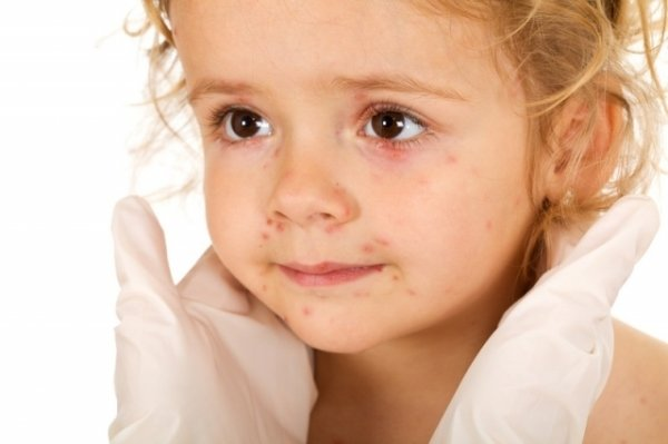 Аллергическая сыпь появляется практически у 60% детей