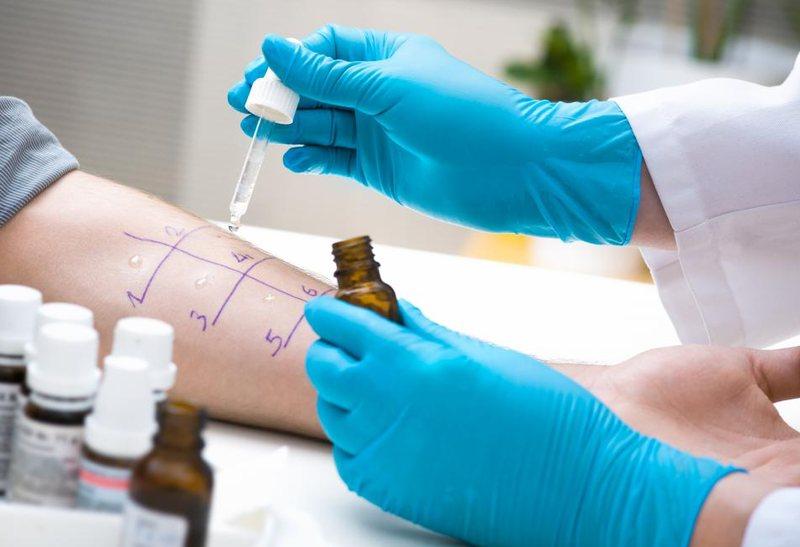 Помочь может только врач-аллерголог, который проведет пробы и выявит причину реакции