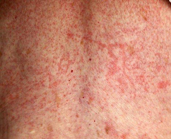 Сыпь как проявление аллергии