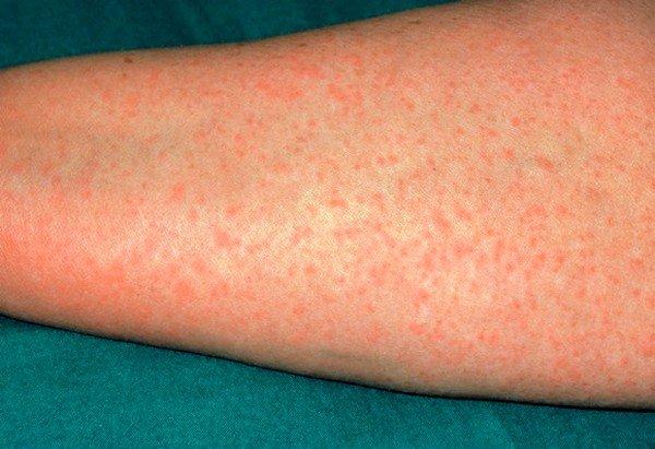 Причины образования сыпи при аллергии фото