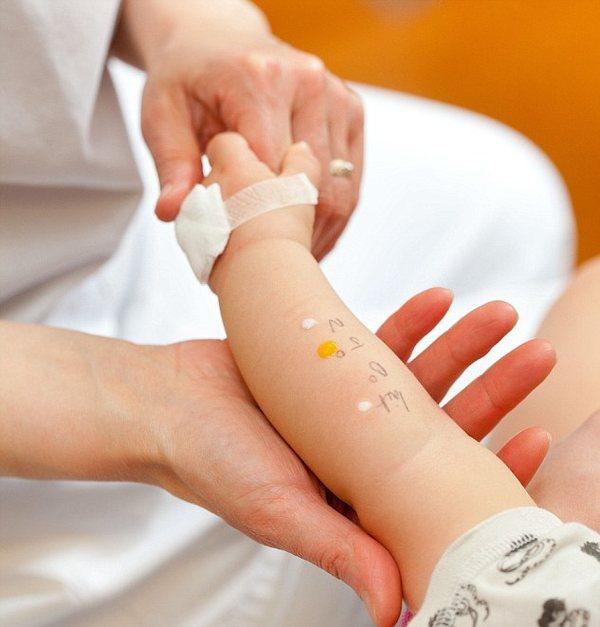 Врач-аллерголог делает кожные пробы ребенку
