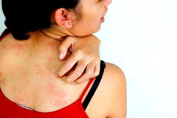 Такое неприятное явление, как зуд, во время аллергии может появиться абсолютно у любого больного