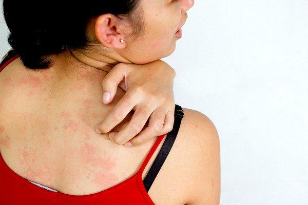 Народные средства против аллергии на коже