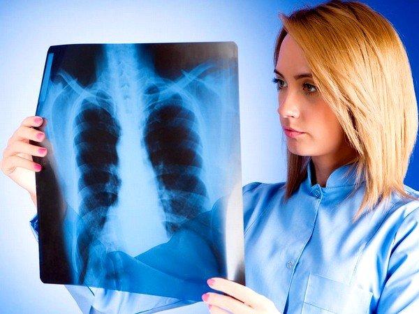 Бромгексин может быть назначен при пневмонии