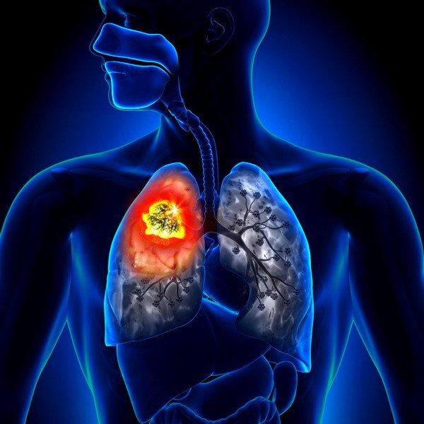 Кашель при раке легких: как его облегчить фото