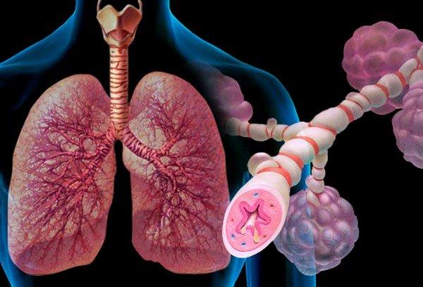 Контакт с биологической и/или минеральной пылью, вредными примесями, газами и испарениями на производстве, составляет до 50% от общего числа заболеваний