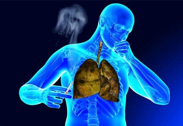 Курение часто приводит к бронхиту