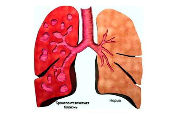 Бронхоэктатическая болезнь может быть причиной затяжного кашля