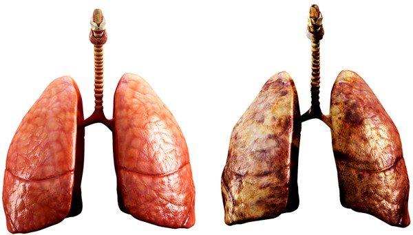Легкие у здорового человека и курильщика