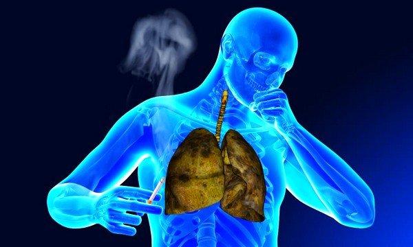 Диагноз ХОБЛ можно получить спустя всего 6-7 лет курения табака