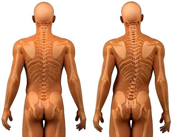 Нарушение осанки может быть причиной остеохондроза